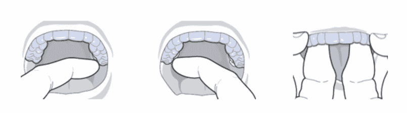 removing an aligner from the mouth